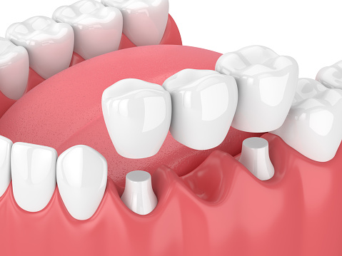 Fixed dental bridges and implants at Lauren Becker DDS, PC