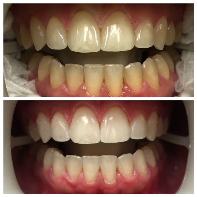 Teeth whitening treatment at Lauren Becker DDS, PC
