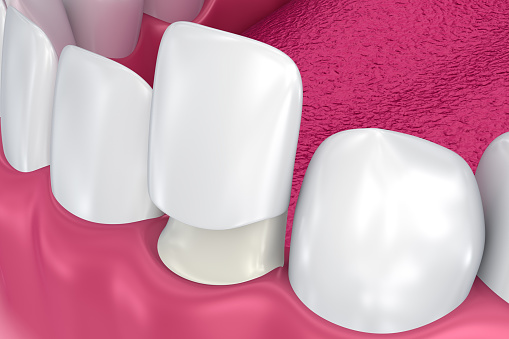 Porcelain Veneers at Lauren Becker DDS, PC