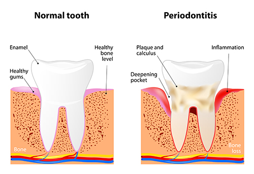 Illustration of a tooth with periodontal disease, in need of scaling and root planing, at dentist office in New York, NY.